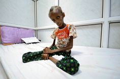 Saida Ahmad Baghili, 18, who is affected by severe acute malnutrition, sits on a bed at the al-Thawra hospital in the Red Sea port city of Houdieda, Yemen