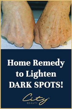 Here's a Great Solution Recommended by Beauty Experts to clear up dark spots, age spots & sun spots. Nutrition Education, Sport Nutrition, Nutrition Poster, Nutrition Month, Nutrition Quotes, Holistic Nutrition, Healthy Nutrition, Neutrogena, Health Remedies