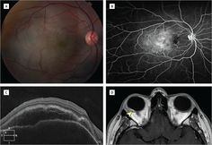 Posterior Nodular Scleritis. JAMA Ophthalmol. 2015;133(1):e141801. doi:10.1001/jamaophthalmol.2014.1801.