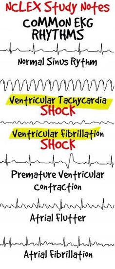 Common EKG rhythms! Nursing