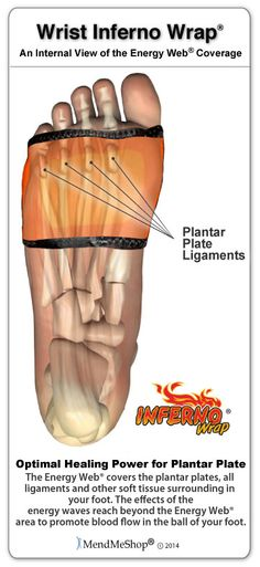 Painful plantar plate tears are treated best with cold compression ...