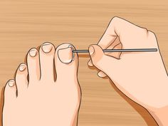 How to Relieve Ingrown Toe Nail Pain. An ingrown toe nail occurs when your toe nail starts to grow down into the skin around it. Ingrown toe nails can cause swelling, pain, and discomfort, especially when you're wearing shoes. Ingrown Nail, Pipe Insulation, Wd 40, Miter Saw, Quites, Garage Storage, Kitchen Storage, Home Hacks, Toe Nails