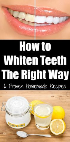 How to Whiten Teeth The Right Way: 6 Proven Homemade Recipes