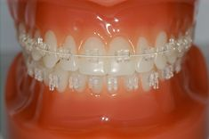 Orthodontics: Setting the alignment of teeth and jaws right. Technically it is referred as the treatment of Malocclusion.