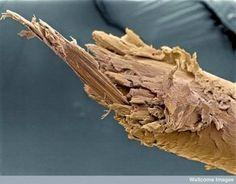 cabelo-espigado-microscopio-eletronico