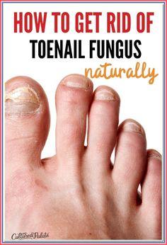 Best Toenail Fungus Treatment, Toenail Fungus Cure, Toe Fungus, Fungus Toenails, Fingernail Fungus, Alternative Treatments, Natural Treatments, Natural Cures, Natural Health