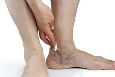 Varicose-Veins-in-Feet-and-Ankles
