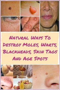 There's no doubt some of the most common cosmetic issues affecting both men and women include moles, skin tags, clogged pores and age spots. These skin issues often result from hormonal imbalance, … #hormonalissues