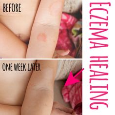 Natural healing remedy for eczema. Safe on kids. Totally natural!