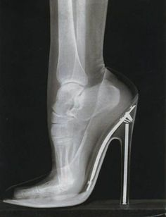 This is why high heels hurt your feet.: Yet I wear them anyway.