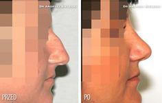 Korekcja wyglądu nosa - zdjęcia przed i po zabiegu