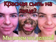 Способы борьбы с красной сыпью на лице