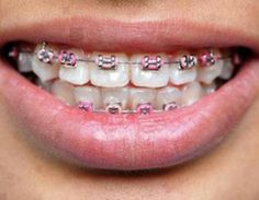 Dental Braces for your teeth straightening. What problems treats orthodontics, Types of braces. Our orthodontist can help you! Pink Braces, Fake Braces, Braces Tips, Dental Braces, Teeth Braces, Braces Cost, Braces Smile, Dental Care, Better Braces