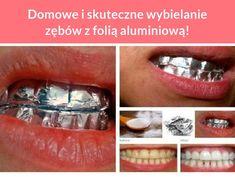 Domowe i skuteczne wybielanie zębów z folią aluminiową!