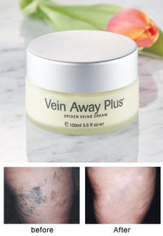 Vein Away Plus, Reduce the Appearance of Spider Veins   Solutions