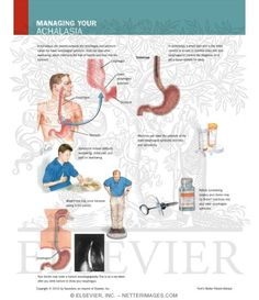 How to manage your achalasia