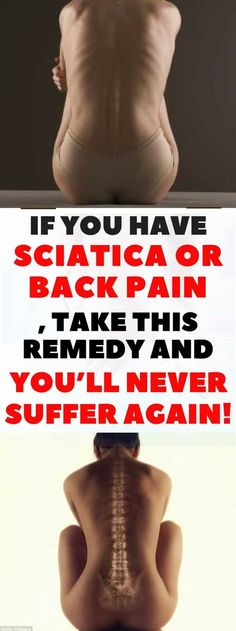 Joint Pain Remedies If You Have Sciatica or Back Pain, Take This Remedy and You'll Never Suffer Again! Sciatica Symptoms, Sciatica Relief, Headache Relief, Sciatica Exercises, Migraine Headache, Hip Stretches, Back Pain Remedies, Natural Headache Remedies, Back Pain