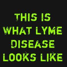 I Am What Lyme Disease Looks Like!