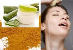 Acne scars can be a cause of concern for any young girl. If you are among those who have been suffering from acne marks and are looking for a permanent cure for the same, it is worthy to try home remedies for acne marks. Home Remedies For Pimples, Skin Care Remedies, Acne Remedies, Pimples On Forehead, Acne Marks, How To Treat Acne, Acne Prone Skin, Skin Treatments