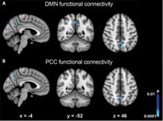 A remarkable increase in introspection is at the core of these altered states of consciousness. Self-oriented mental activity has been consistently linked to the Default Mode Network (DMN), a set of brain regions more active during rest than during the execution of a goal-directed task.