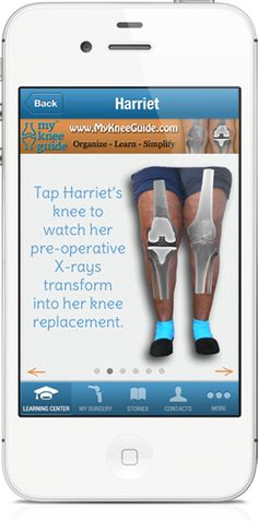 Knee Replacement Surgery, Learn, Organize and Find - My Knee Guide
