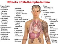 Meth addiction is a problem faced by many Americans that is difficult to overcome alone. Learn about the side effects, signs, and symptoms of meth addiction, and explore your treatment options. Addiction Recovery, Addiction Quotes, Addiction Help, Psychosis Symptoms, Schizophrenia, Withdrawal Symptoms, Throat Swelling, Medical Marijuana, Fibromyalgia
