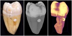 How enamel pearl looks in vivo, on xray and dental CT scan