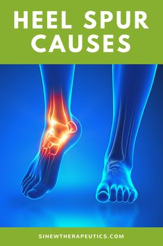 This abnormal extra bone growth is in response to ligaments tightening from activities that stress the feet, such as running or prolonged standing; overload the feet, such as from being obese; or abnormally stretching the ligament, such as from wearing healed shoes or ill fitting shoes. Get fast pain relief and recovery of your heel spur by following our treatment guide based on if you have acute or chronic stage symptoms.