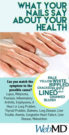 www.webmd.com/skin-problems-and-treatments/ss/slideshow-nails-and-health?ecd=soc_fb_043015_ss_nailssayabouthealth -- Did you know your nails can reveal clues to your overall health? A touch of white here, a rosy tinge there, or some rippling or bumps may be a sign of disease in the body. Problems in the liver, lungs, and heart can show up in your nails. Keep reading to learn what secrets your nails might reveal.