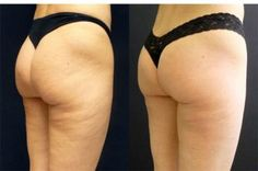 4 cheap solutions against cellulite