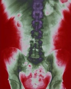 Torso X-Ray