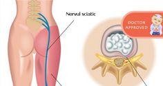 Moduri eficiente prin care poti reduce durerile sciatice | Secretele