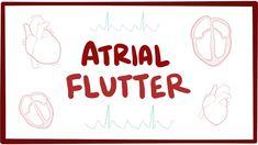 Atrial flutter (type 1, type 2) - causes, symptoms, ECG & pathology