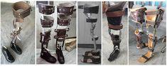 custom recreational brace for all. leg braces, milwaukee braces, AFO's, below knee KAFO with metal/bars shoe, ctlso brace. Character Drawing, Character Design, Milwaukee Brace, Custom Boots, Knee Brace, Short Legs, Braces, Shoe, Metal