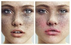 Freckletastic is an Editorial that Finds Beauty in Imperfections #makeup trendhunter.com