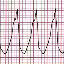 What is Abnormal Heart Rhythm? Abnormal heart rhythms may not seem very dangerous, but if due attention is not given, it can be life threatening.Read more , http://suddenlife.com/home