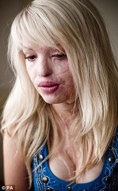 Katie Piper, a victim of abuse, had acid thrown in her face. Acid was thrown in her face by her boyfriends friend. Her boyfriend hired him to do this, knowing it would ruin the rest of her life and put her in much physical and emotional pain.