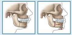 Corrective jaw and facial surgery, also know as orthognathic surgery, is surgery of the jaws and facial structures to correct problems of abnormal growth and development.