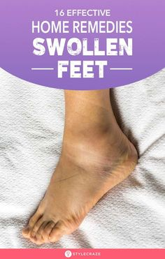 16 Effective Home Remedies For Swollen Feet: Anything from long, tiring days to wearing high heels can trigger the swelling in your feet. This swelling is adamant. It's time you stop suffering…More Foot Remedies, Cold Home Remedies, Natural Home Remedies, Health Remedies, Herbal Remedies, Foot And Ankle Swelling, Leg Swelling, Essential Oil For Swelling, Water Retention Remedies