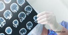 Researchers based in Ireland have developed a groundbreaking blood test that can diagnose Alzheimer's disease in its early stages and predict how it will affect a person's brain. Alzheimers, Alzheimer's Disease Facts, Signs Of Alzheimer's, Blood Test Results, Brain Aneurysm, Gene Therapy, Best Doctors, 5 Things, Natural Treatments