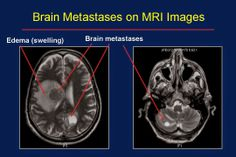 modern surgery: What is metastatic brain cancer?