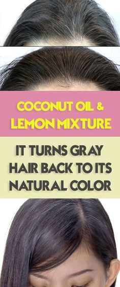 Home Remedy: Coconut Oil And Lemon Mixture Will Turns Gray Hair Back To Its Natural Color - Healthy & Beauty Magazine Grey Hair Natural Remedy, Natural Hair Styles, Grey Hair Remedies, Natural Remedies, Hair Fall Remedy Home, Baking Soda And Honey, Reduce Hair Fall, Baking Soda Shampoo, Hair Issues