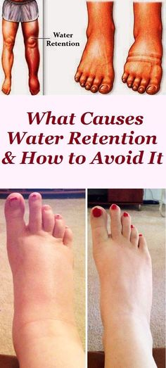 If you're suffering from water retention you should realize your doctor, to rule out anything sinister. Low-Calorie Diets If you have water retention you are quite inclined to be overweight. Water retention is simply . Health Advice, Health Care, Physical Inactivity, Heart Function, Doctor Advice, Asthma Symptoms, Body Organs, Healthy Tips, Healthy Women