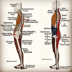 for   WHAT HAPPENS WHEN A MUSCLE CHANGE LENGTHS?  Through repetitive usage, #muscles may adaptively lengthen or shorten from a baseline resting length, and whenever there is such a change in length it is a change more in the fascia than the contractile cells . Remember that muscle tissue is 50-60% #fascia.  Essentially it is the fascia that has lengthened or shortened. #education #posture #body #health