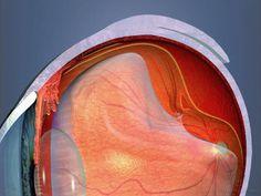iLentes - Lentes de Contato: Descolamento da retina