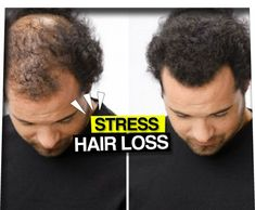 Hair Loss Magic Homemade Recipe For Fast Hair Growth - Must Try Now!