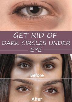 Get Rid of Dark Circles Under Eye