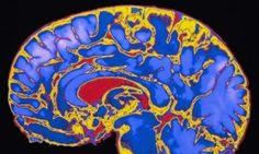 Study Finds: Childhood Stimulation Key To Brain Development