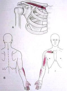 Chest and Arm pain....
