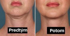 Ditch that Double Chin! Is Kybella the New Botox? Neck Liposuction, Lose Fat, Lose Weight, Weight Loss, Reduce Face Fat, Reduce Double Chin, Natural Face Lift, Face Exercises, Facial Muscles